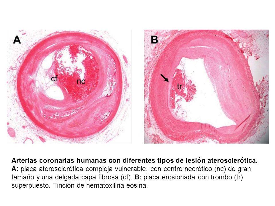 Arterias coronarias humanas con diferentes tipos de lesión aterosclerótica.