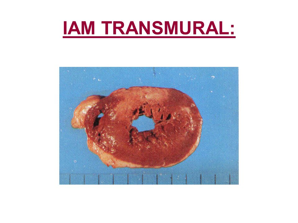 IAM TRANSMURAL: