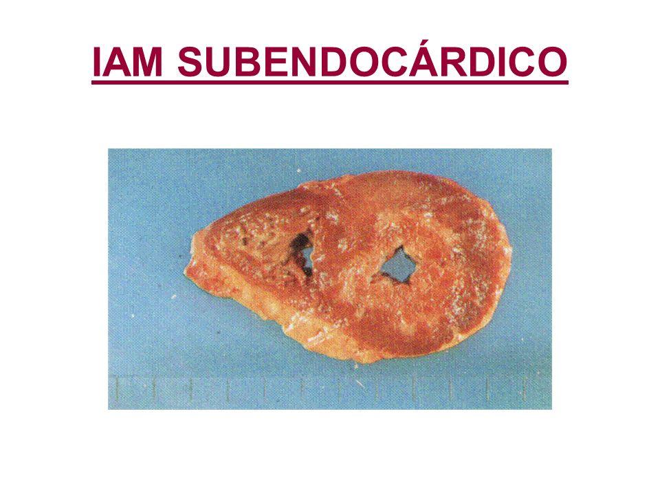 IAM SUBENDOCÁRDICO