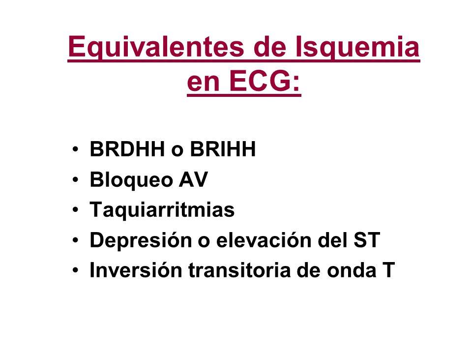 Equivalentes de Isquemia en ECG: