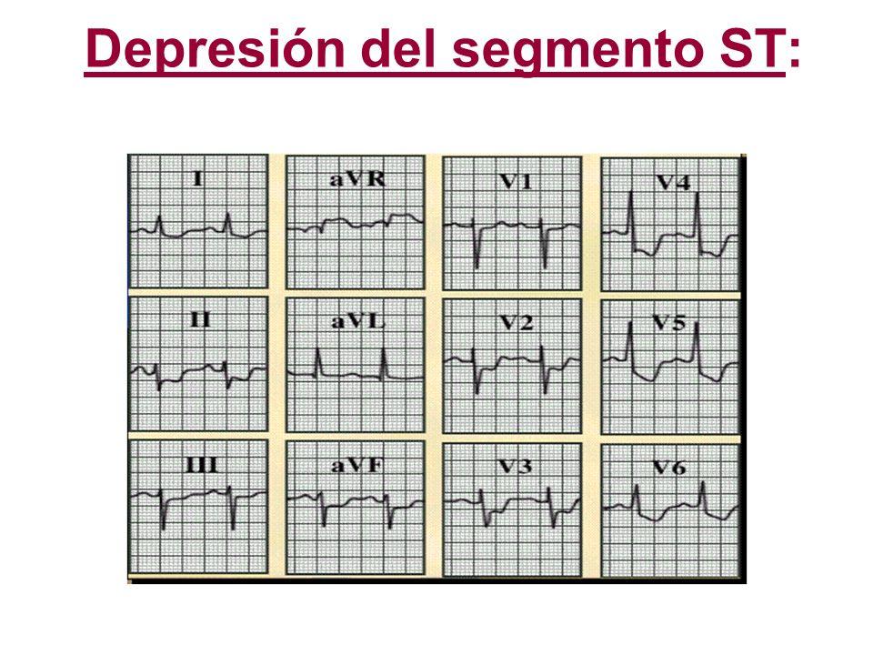 Depresión del segmento ST: