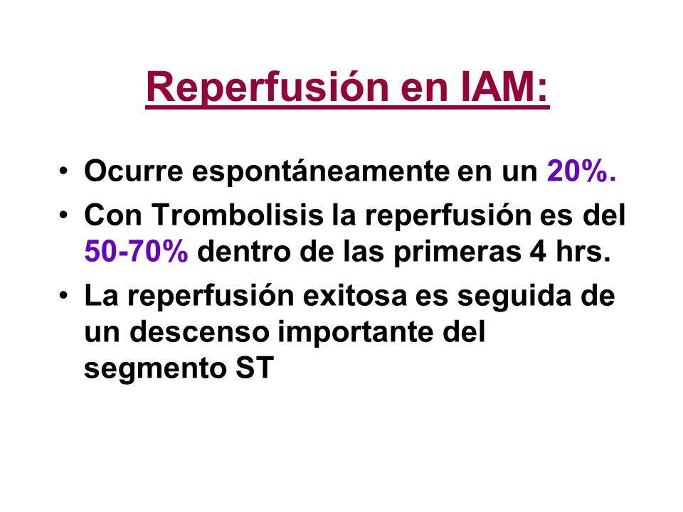 Reperfusión en IAM: Ocurre espontáneamente en un 20%.