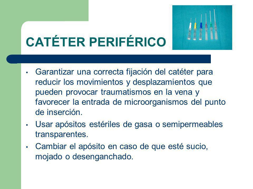 CATÉTER PERIFÉRICO