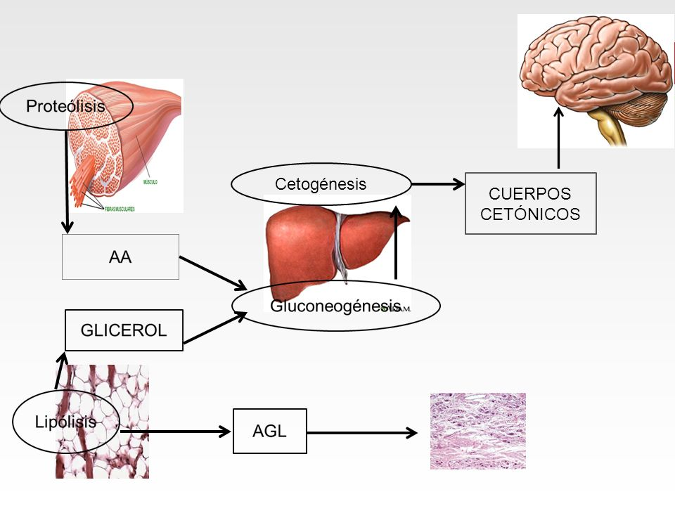 Cetogénesis CUERPOS CETÓNICOS