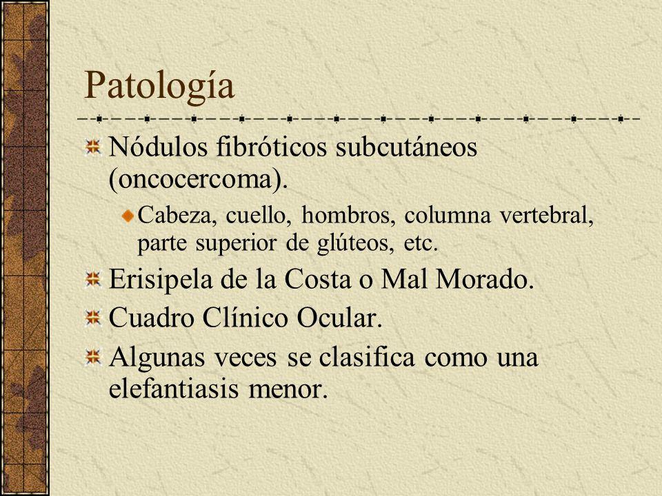 Patología Nódulos fibróticos subcutáneos (oncocercoma).