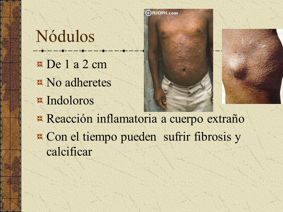 Nódulos De 1 a 2 cm No adheretes Indoloros