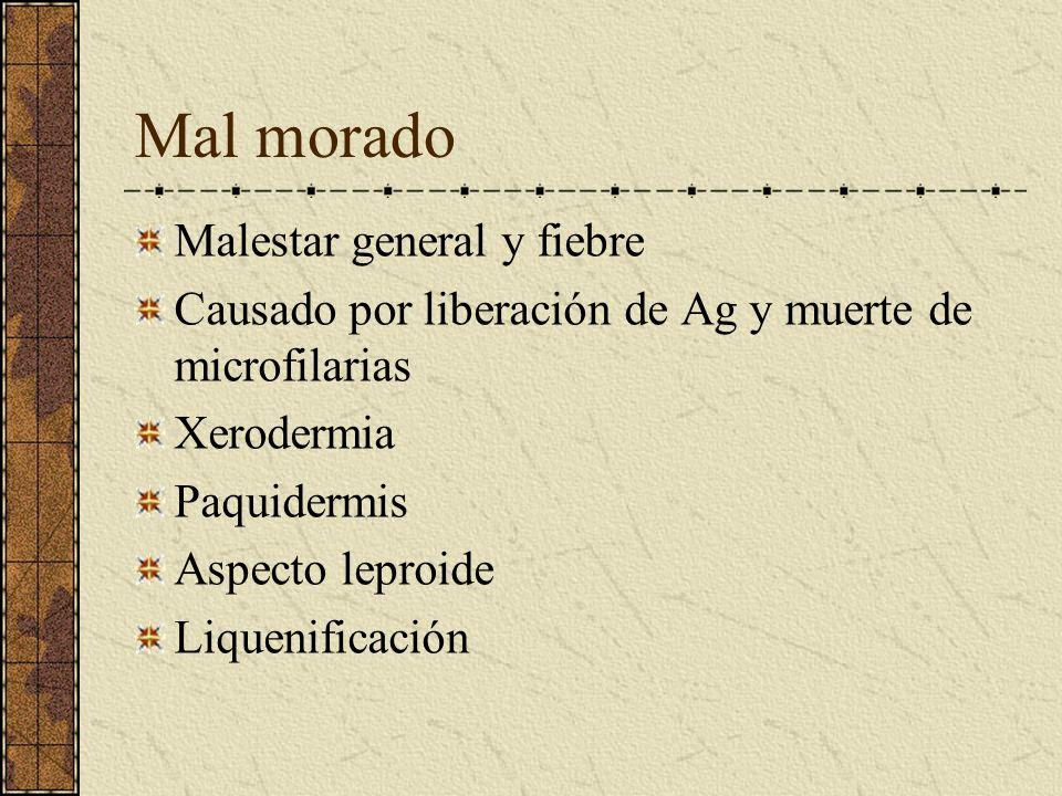 Mal morado Malestar general y fiebre