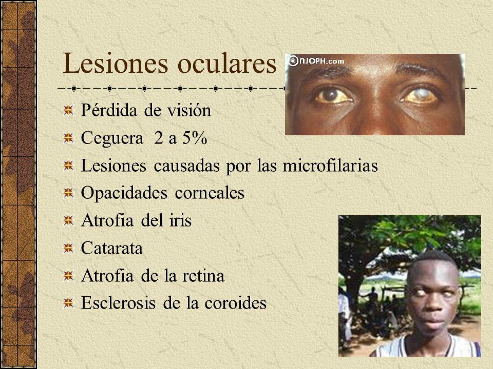 Lesiones oculares Pérdida de visión Ceguera 2 a 5%