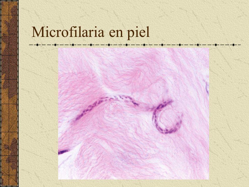 Microfilaria en piel