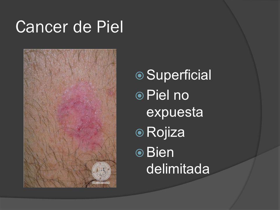 Cancer de Piel Superficial Piel no expuesta Rojiza Bien delimitada