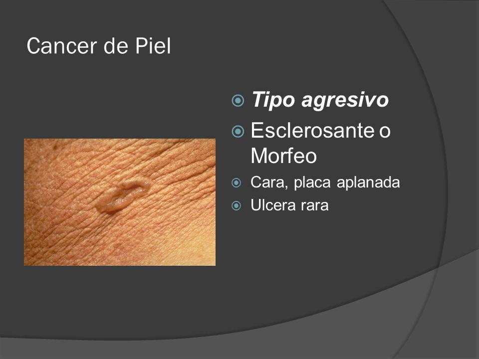 Cancer de Piel Tipo agresivo Esclerosante o Morfeo