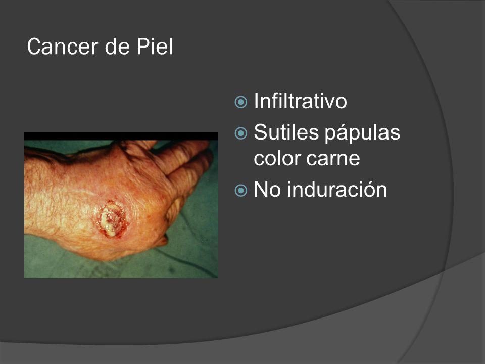 Cancer de Piel Infiltrativo Sutiles pápulas color carne No induración