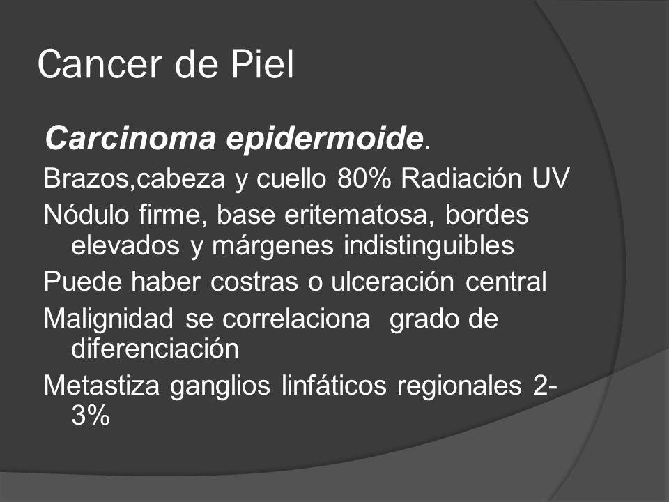 Cancer de Piel Carcinoma epidermoide.
