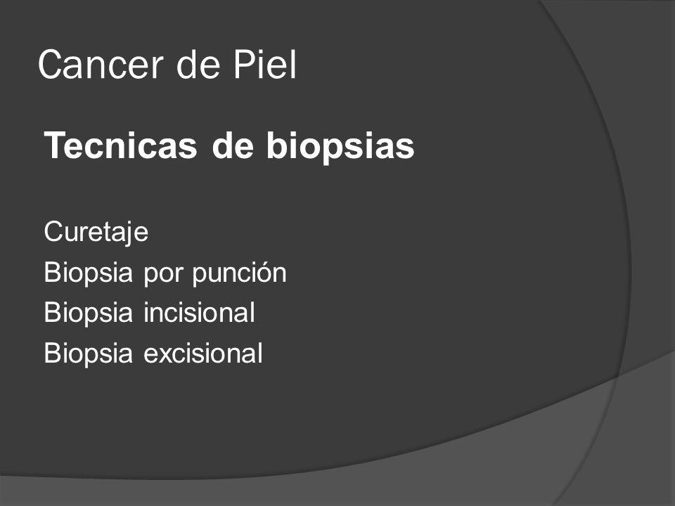 Cancer de Piel Tecnicas de biopsias Curetaje Biopsia por punción
