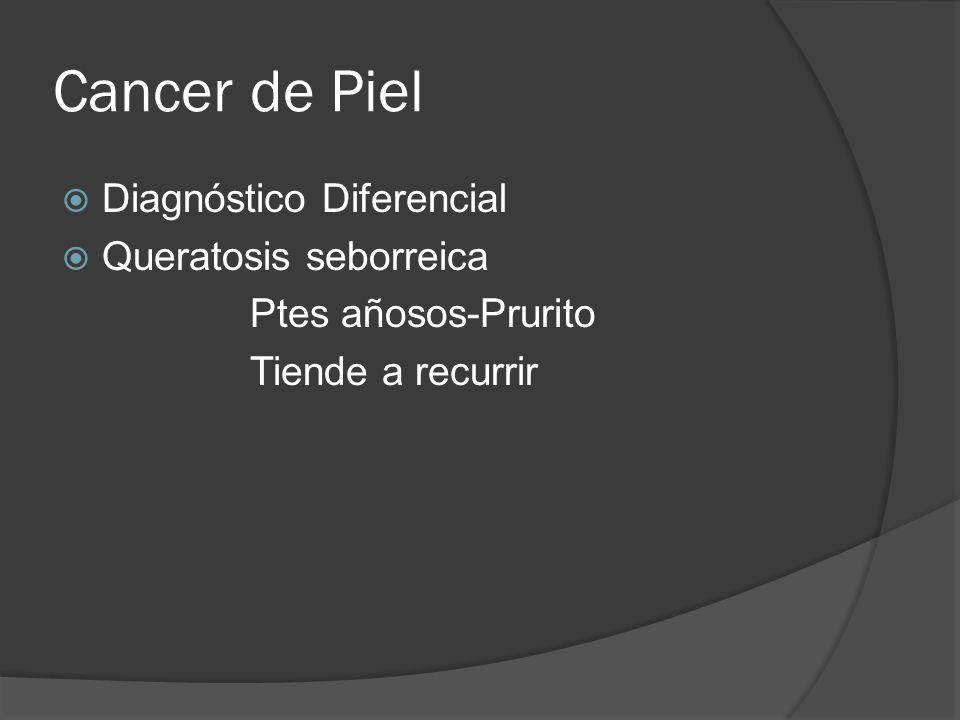 Cancer de Piel Diagnóstico Diferencial Queratosis seborreica