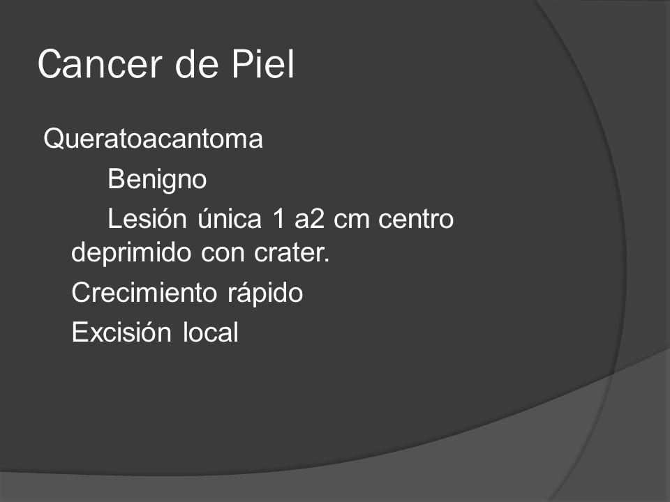 Cancer de Piel Queratoacantoma Benigno Lesión única 1 a2 cm centro deprimido con crater.