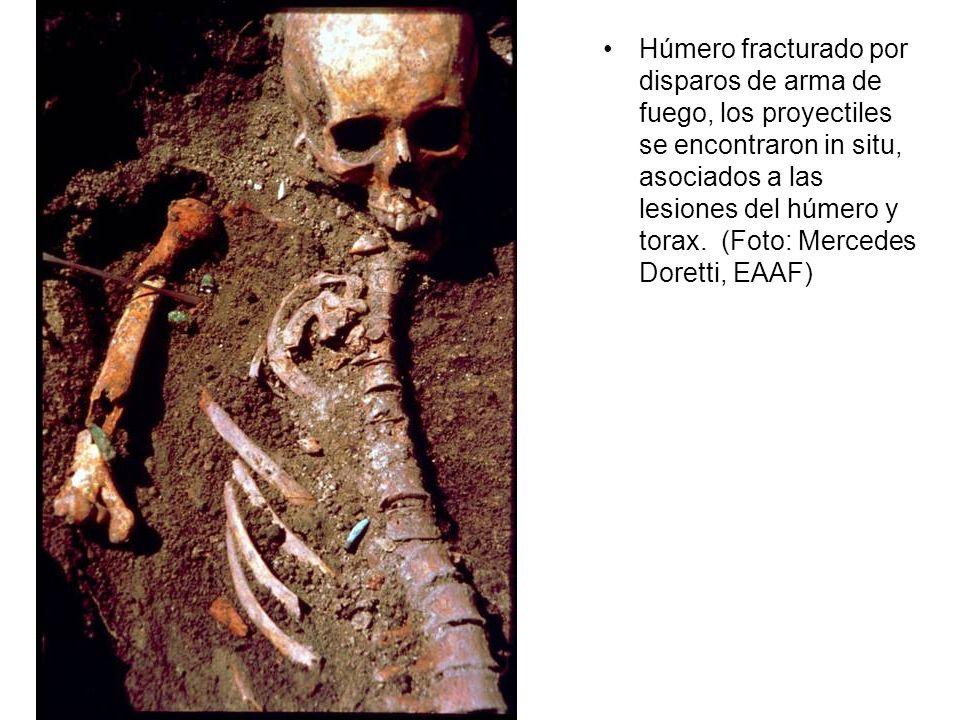 Húmero fracturado por disparos de arma de fuego, los proyectiles se encontraron in situ, asociados a las lesiones del húmero y torax.