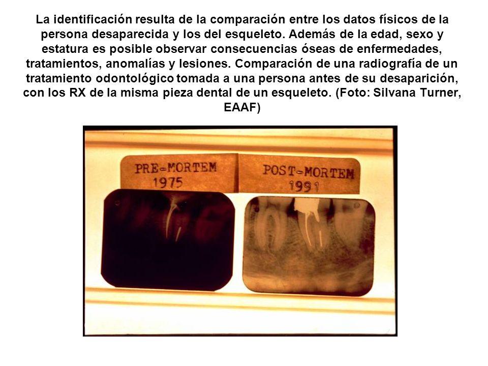 La identificación resulta de la comparación entre los datos físicos de la persona desaparecida y los del esqueleto.