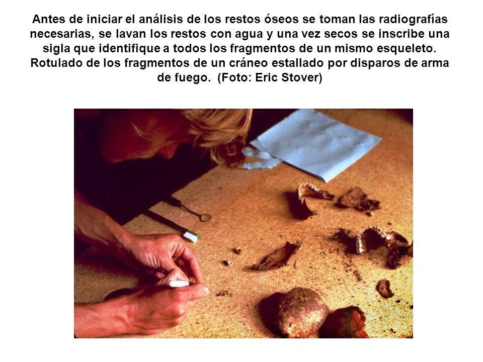 Antes de iniciar el análisis de los restos óseos se toman las radiografías necesarias, se lavan los restos con agua y una vez secos se inscribe una sigla que identifique a todos los fragmentos de un mismo esqueleto.