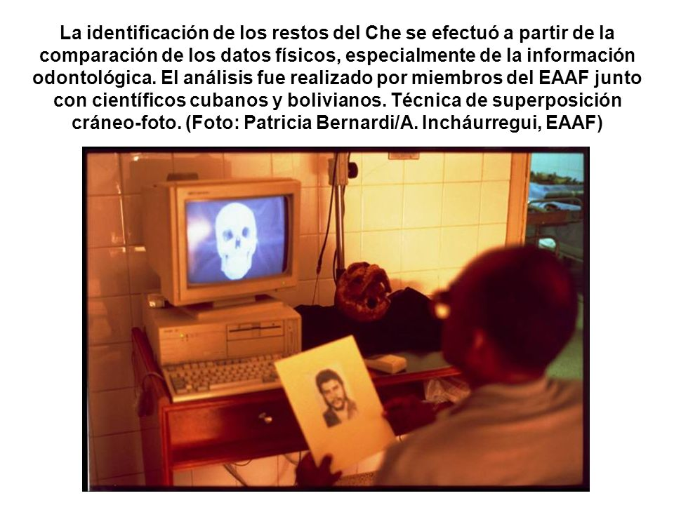 La identificación de los restos del Che se efectuó a partir de la comparación de los datos físicos, especialmente de la información odontológica.