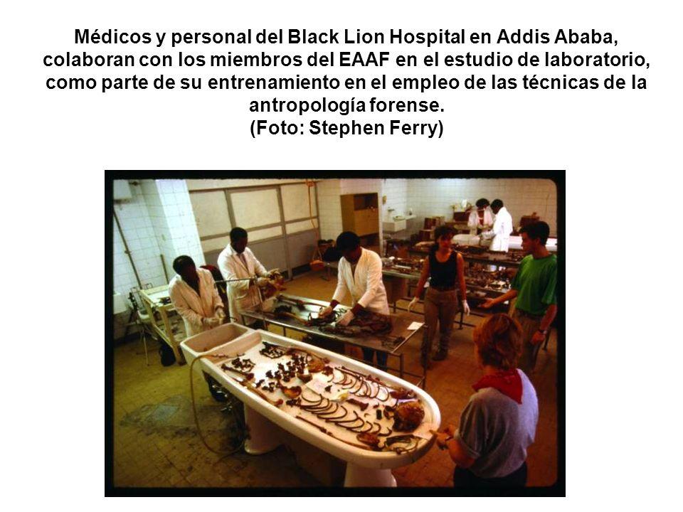 Médicos y personal del Black Lion Hospital en Addis Ababa, colaboran con los miembros del EAAF en el estudio de laboratorio, como parte de su entrenamiento en el empleo de las técnicas de la antropología forense.