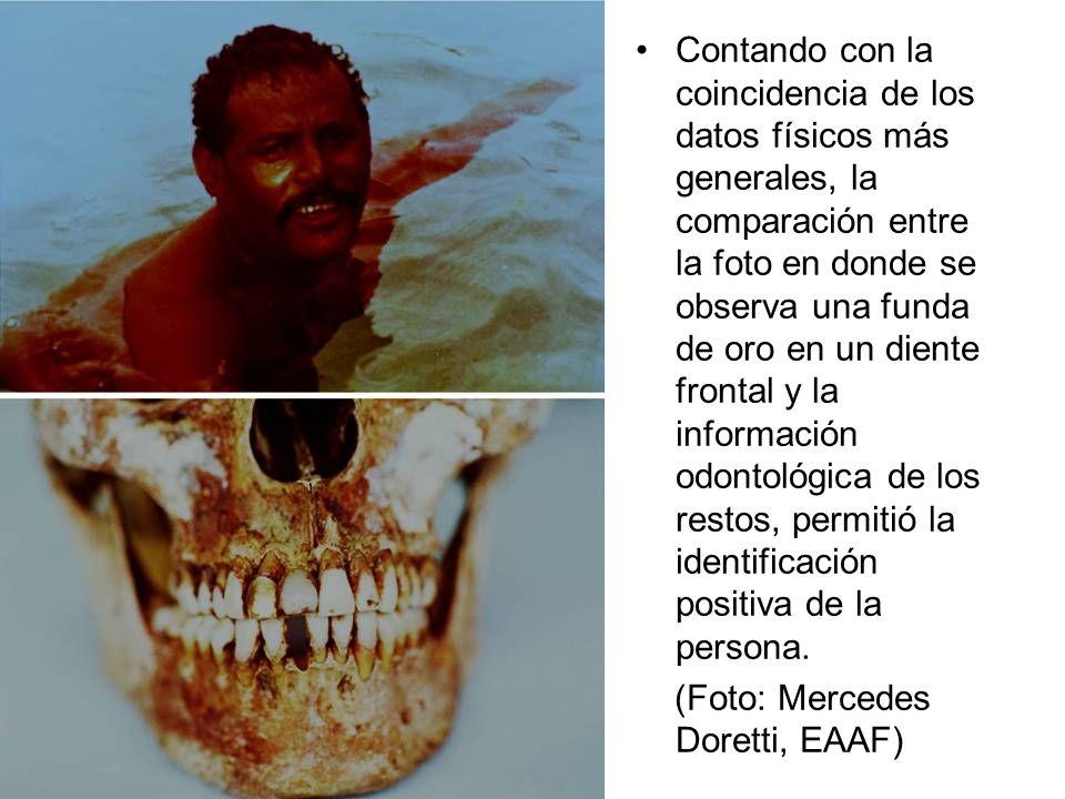 Contando con la coincidencia de los datos físicos más generales, la comparación entre la foto en donde se observa una funda de oro en un diente frontal y la información odontológica de los restos, permitió la identificación positiva de la persona.