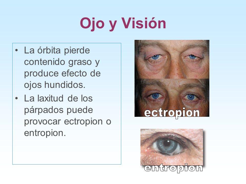 Ojo y Visión ectropion entropion