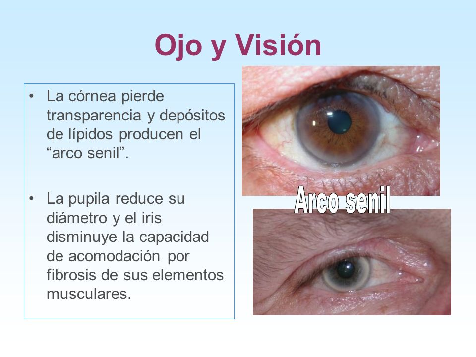 Ojo y Visión La córnea pierde transparencia y depósitos de lípidos producen el arco senil .