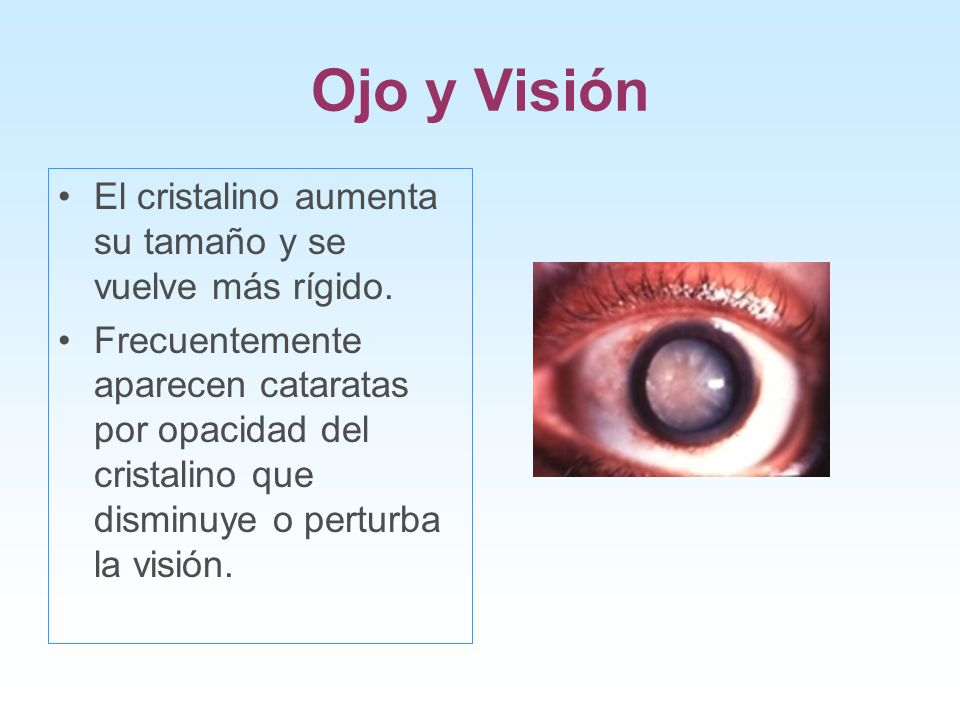 Ojo y Visión El cristalino aumenta su tamaño y se vuelve más rígido.