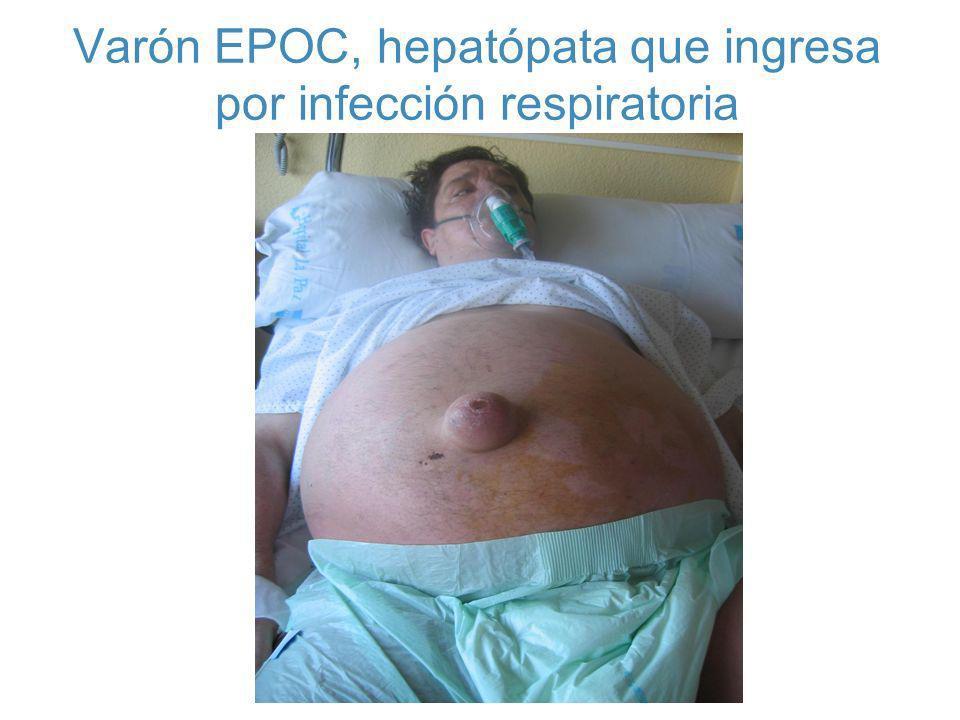 Varón EPOC, hepatópata que ingresa por infección respiratoria