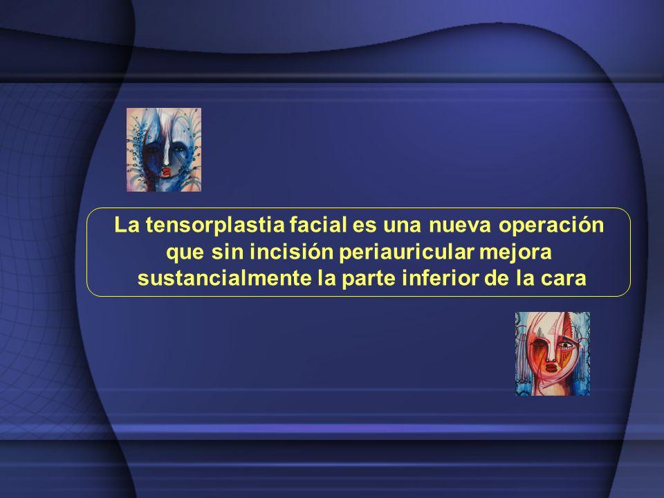 La tensorplastia facial es una nueva operación