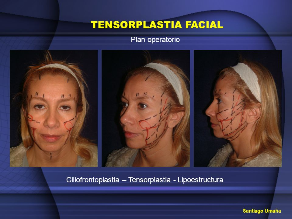 Ciliofrontoplastia – Tensorplastia - Lipoestructura