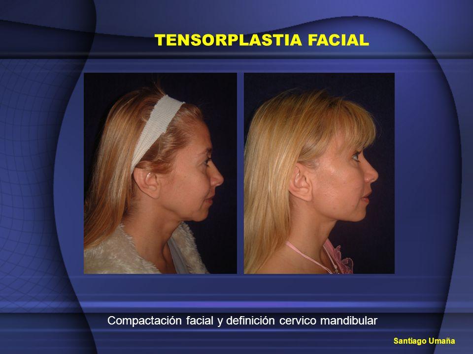 Compactación facial y definición cervico mandibular