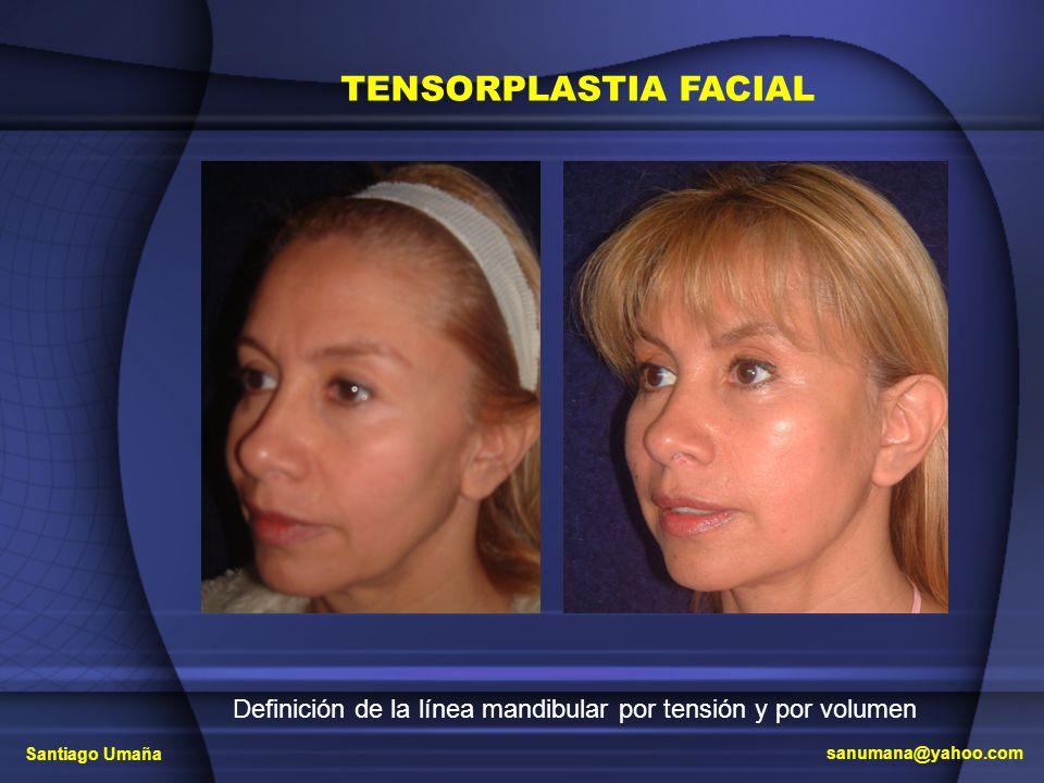 Definición de la línea mandibular por tensión y por volumen