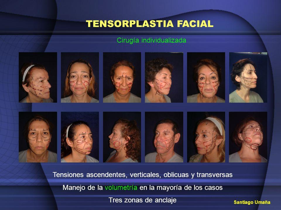 TENSORPLASTIA FACIAL Cirugía individualizada
