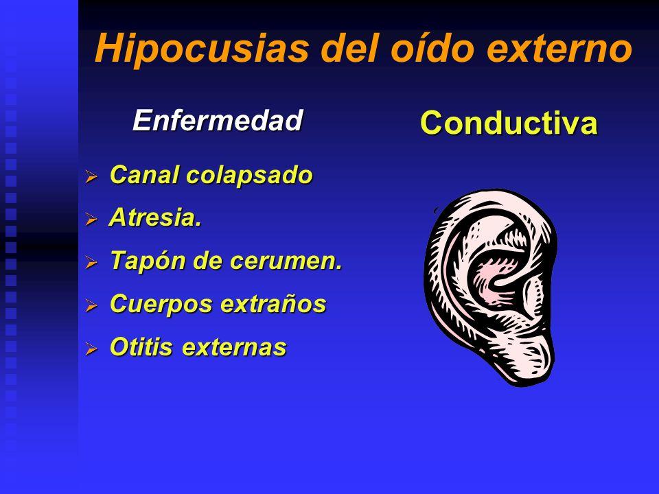 Hipocusias del oído externo