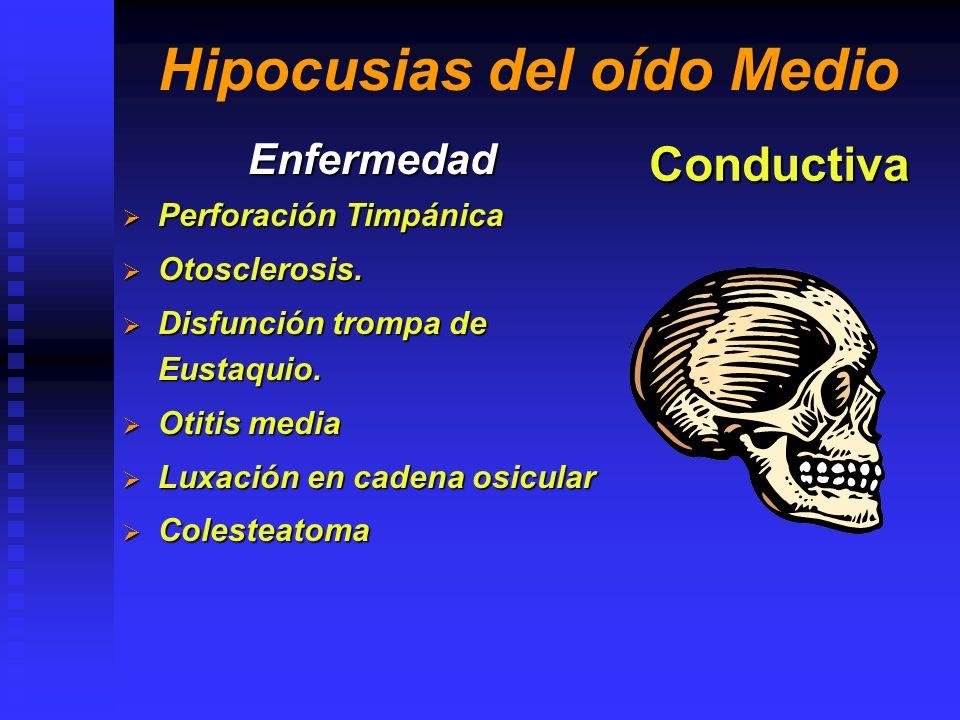 Hipocusias del oído Medio