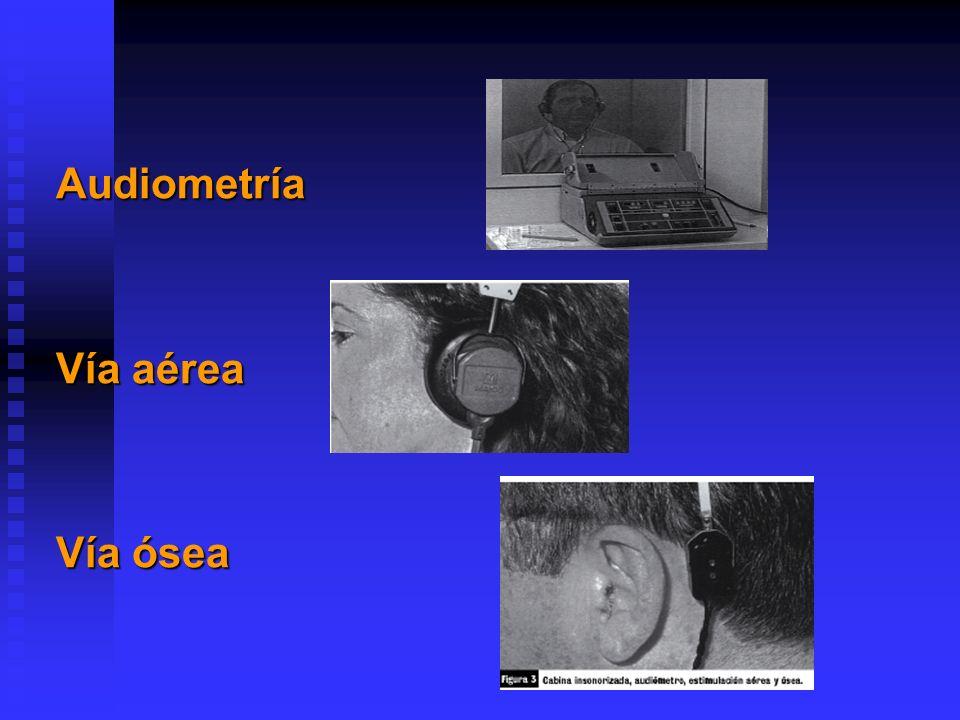 Audiometría Vía aérea Vía ósea