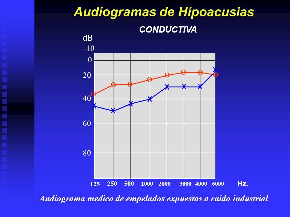 Audiogramas de Hipoacusias