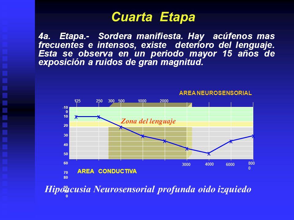 Cuarta Etapa Hipoacusia Neurosensorial profunda oido izquiedo