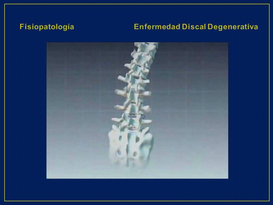 Fisiopatología Enfermedad Discal Degenerativa