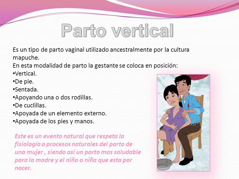 Parto vertical Es un tipo de parto vaginal utilizado ancestralmente por la cultura mapuche.