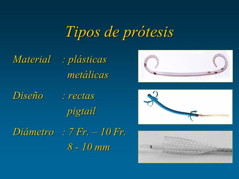 Tipos de prótesis Material : plásticas metálicas Diseño : rectas