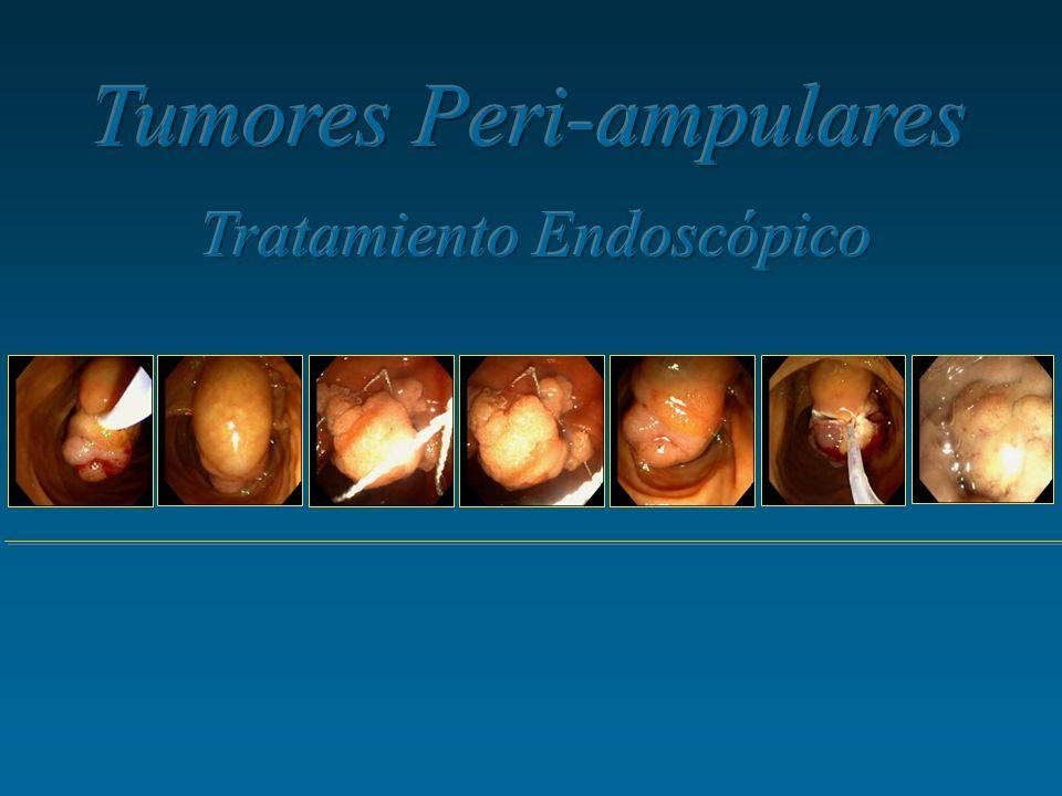 Tumores Peri-ampulares