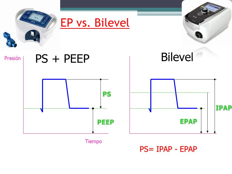 PS + PEEP vs. Bilevel Bilevel PS + PEEP PS= IPAP - EPAP PS IPAP EPAP