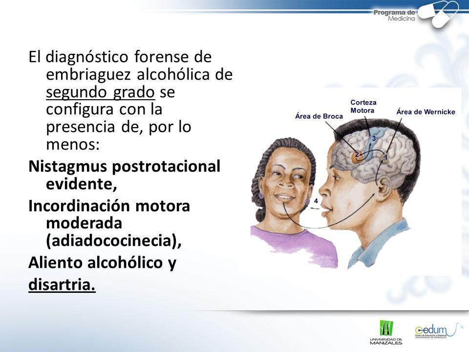 El diagnóstico forense de embriaguez alcohólica de segundo grado se configura con la presencia de, por lo menos: Nistagmus postrotacional evidente, Incordinación motora moderada (adiadococinecia), Aliento alcohólico y disartria.