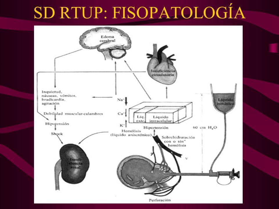 SD RTUP: FISOPATOLOGÍA
