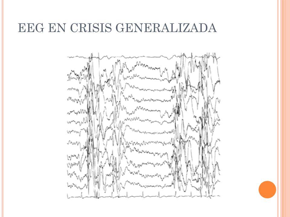 EEG EN CRISIS GENERALIZADA