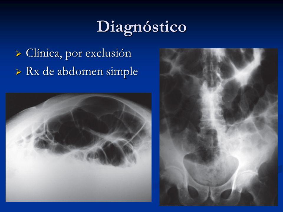 Diagnóstico Clínica, por exclusión Rx de abdomen simple