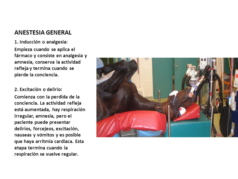 ANESTESIA GENERAL 1. Inducción o analgesia: